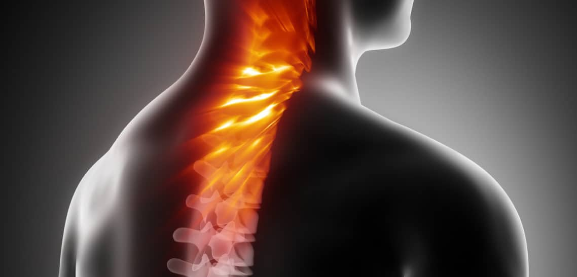 Spinal Injuries and Inflammation