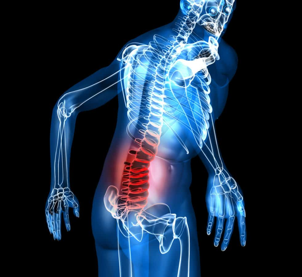 Lower Back Pain X-Ray