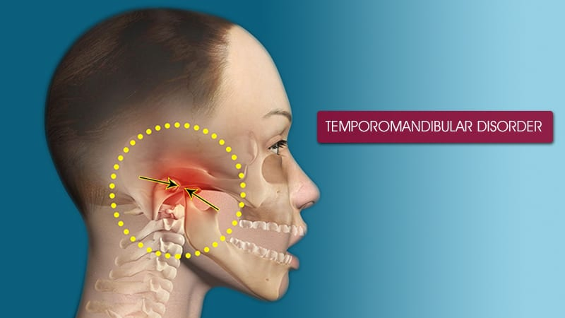 TMJ disorder image TMJ Finding TMJ Relief Through Chiropractic Care