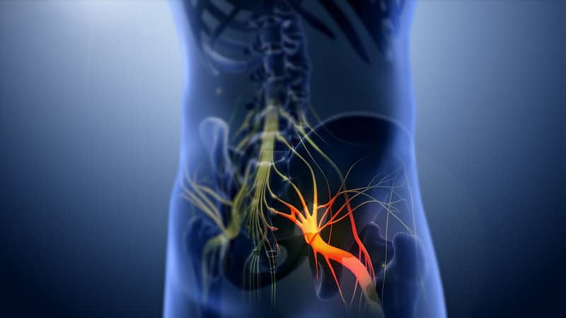 A Natural Solution for Sciatica: Chiropractic Care